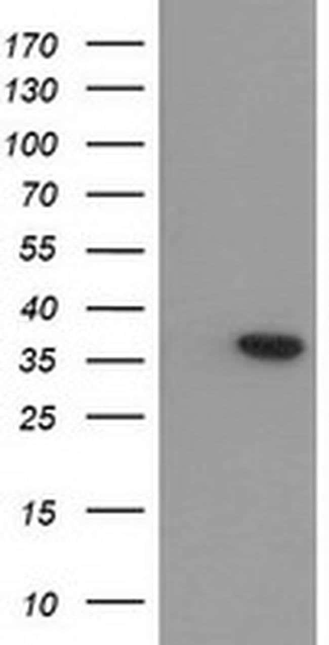 ARG1 Mouse anti-Human, Clone: OTI4E6, liquid, TrueMAB  30 µL; Unconjugated
