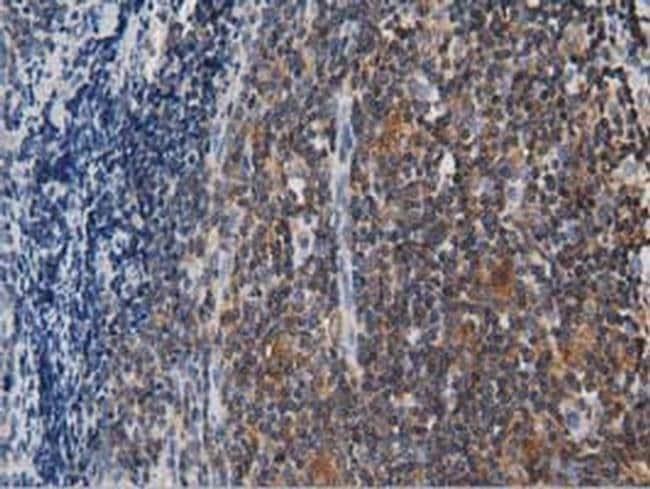 ARHGAP25 Mouse anti-Human, Clone: OTI3H9, liquid, TrueMAB  100 µL;