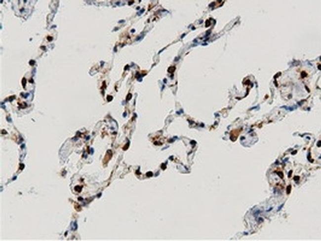 ARHGAP25 Mouse anti-Human, Clone: OTI12G4, liquid, TrueMAB  100 µL;