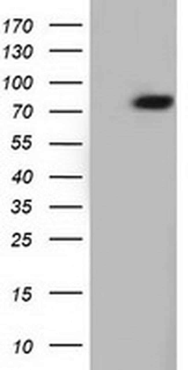 ARHGAP25 Mouse anti-Human, Clone: OTI2D6, liquid, TrueMAB  100 µL;