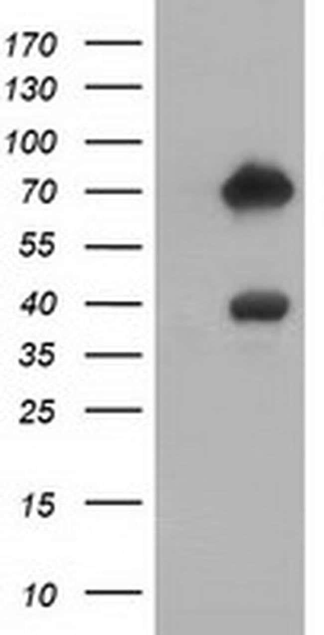 ARHGAP25 Mouse anti-Human, Clone: OTI2D5, liquid, TrueMAB  100 µL;