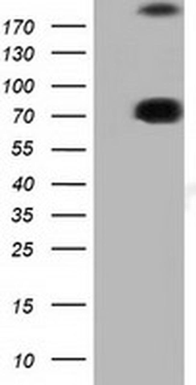ARHGAP25 Mouse anti-Human, Clone: OTI4D8, liquid, TrueMAB  100 µL;