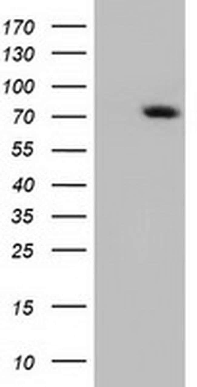ARHGAP25 Mouse anti-Human, Clone: OTI11B9, liquid, TrueMAB  100 µL;