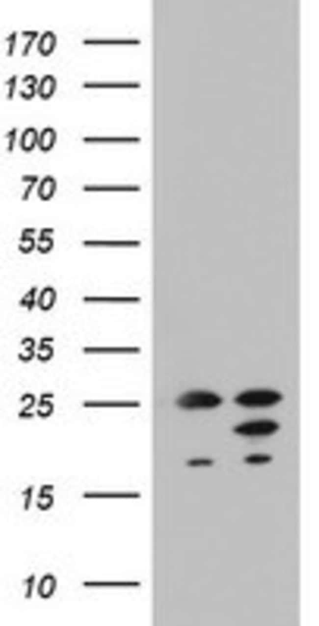 ARL3 Mouse anti-Human, Clone: OTI2G7, lyophilized, TrueMAB  100 µg;