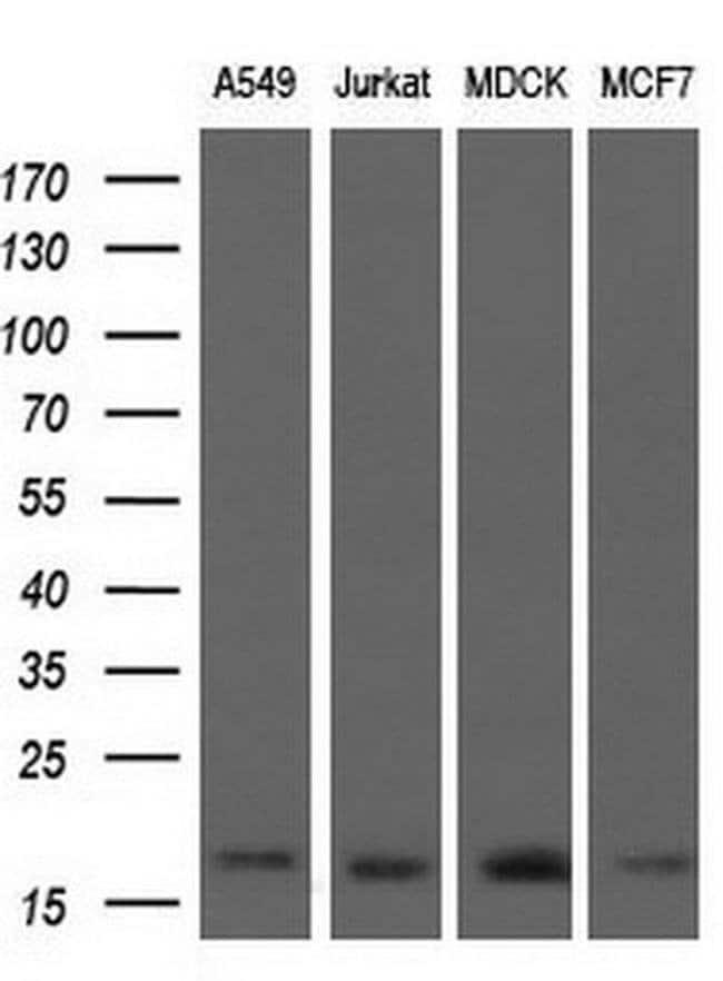 ARPC5 Mouse anti-Human, Clone: OTI2G1, liquid, TrueMAB  30 µL; Unconjugated