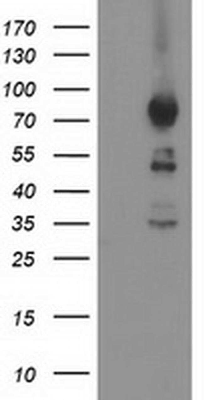 ASCC2 Mouse anti-Human, Clone: OTI1E8, liquid, TrueMAB  100 µL; Unconjugated