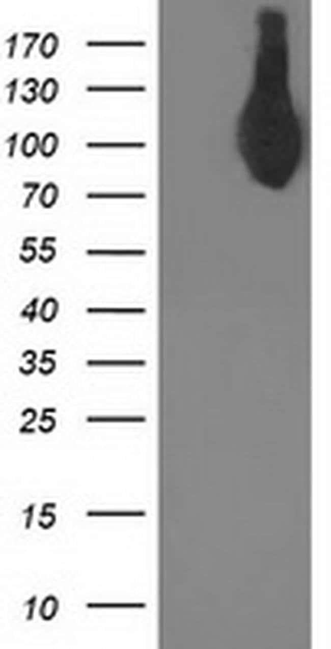 ASCC2 Mouse anti-Human, Clone: OTI2D3, liquid, TrueMAB  100 µL; Unconjugated