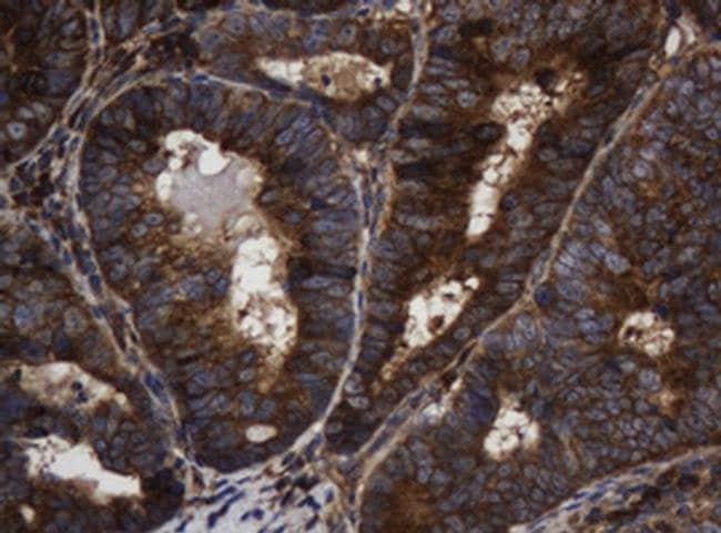 ASGR2 Mouse anti-Human, Clone: OTI2A12, liquid, TrueMAB  100 µL; Unconjugated
