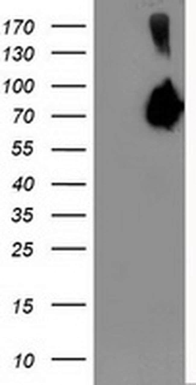ASNS Mouse anti-Human, Clone: OTI1A10, liquid, TrueMAB  100 µL; Unconjugated