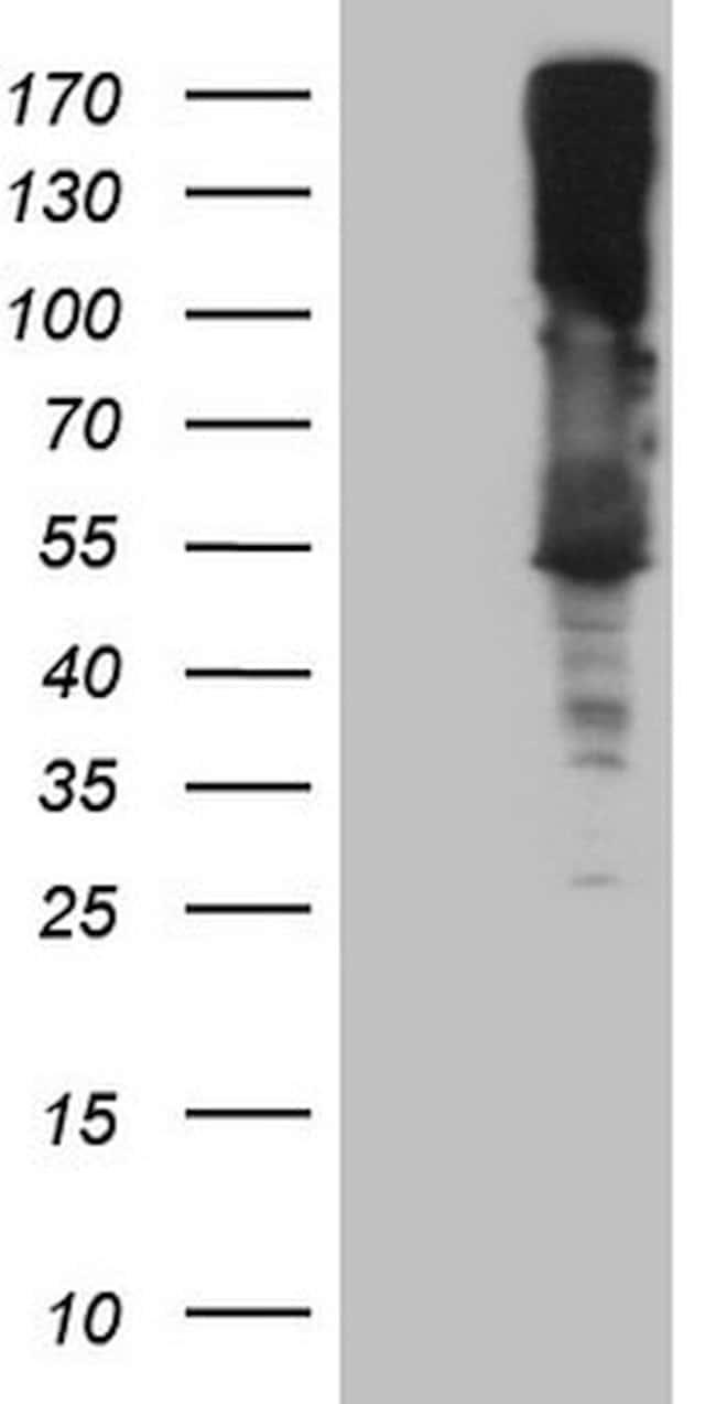 ASS1 Mouse anti-Human, Clone: OTI8C4, lyophilized, TrueMAB  100 µg;