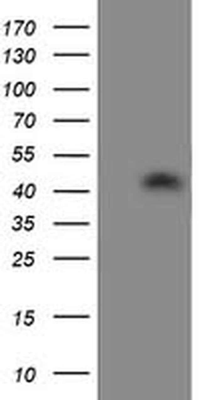 ATG3 Mouse anti-Human, Clone: OTI2C12, liquid, TrueMAB  100 µL; Unconjugated