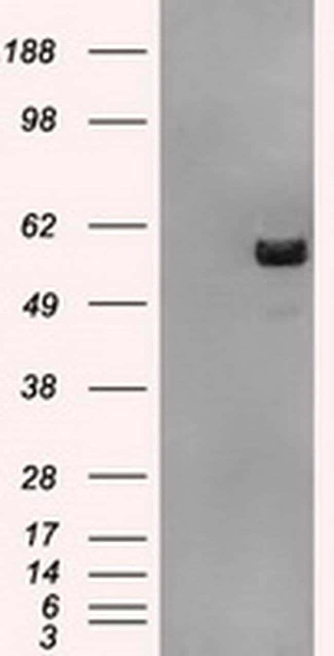 ATP5B Mouse anti-Human, Clone: OTI3H8, liquid, TrueMAB  100 µL; Unconjugated