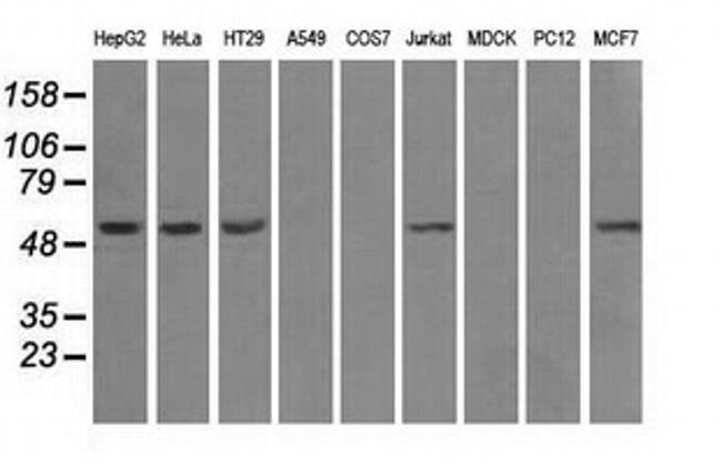 ATP5B Mouse anti-Human, Clone: OTI6B11, liquid, TrueMAB  100 µL; Unconjugated