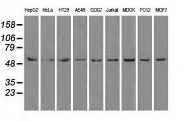 ATP5B Mouse anti-Canine, Human, Rat, Clone: OTI5G2, liquid, TrueMAB  100