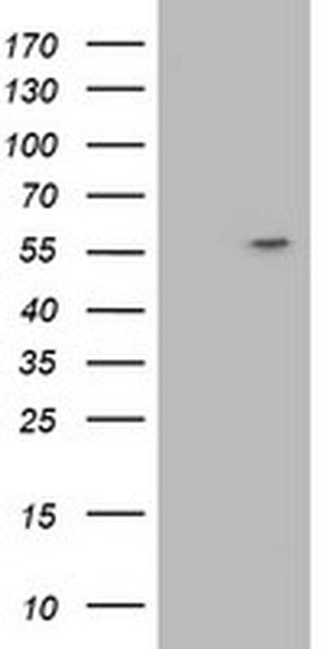 ATP6V1B1 Mouse anti-Human, Clone: OTI3B11, liquid, TrueMAB  100 µL;