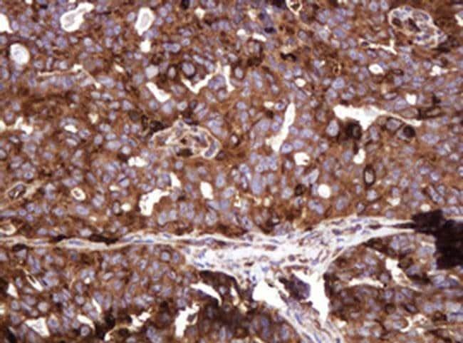 ATP6V1B2 Mouse anti-Human, Clone: OTI1E11, liquid, TrueMAB  100 µL;