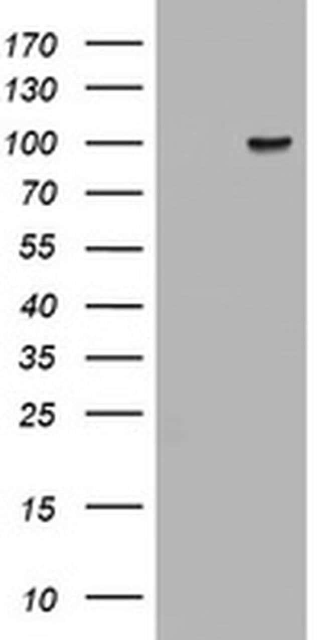 ATRIP Mouse anti-Human, Clone: OTI1G6, liquid, TrueMAB  100 µL; Unconjugated