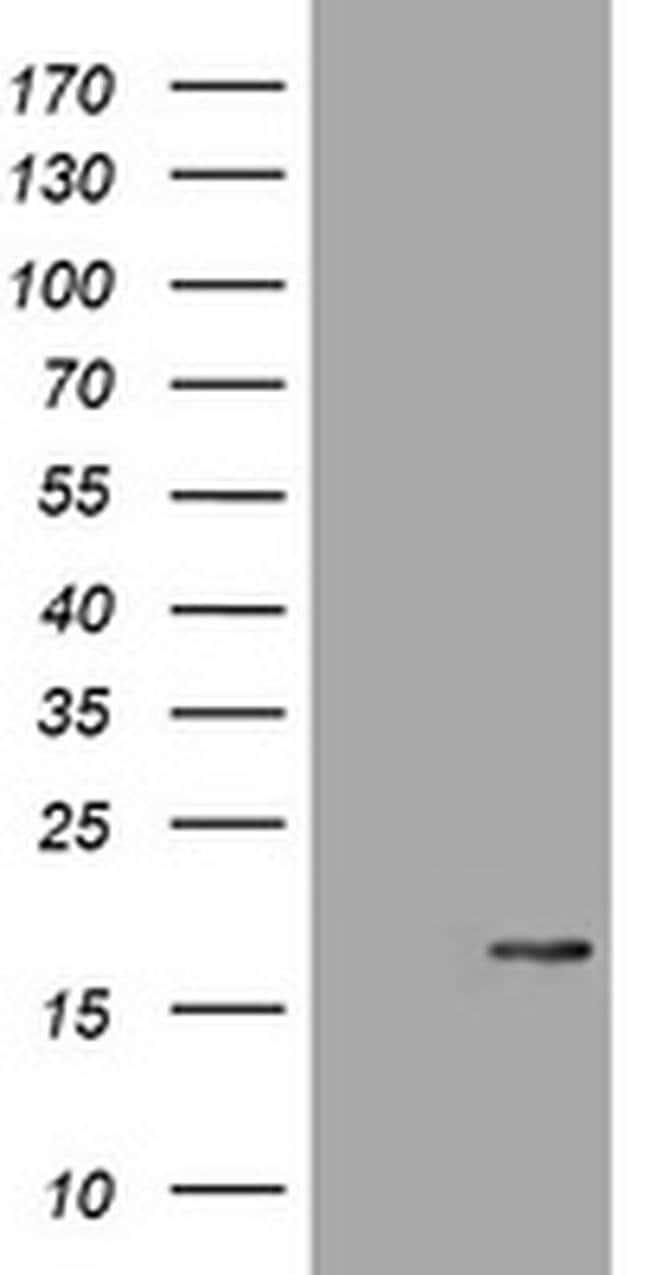 ATXN7L1 Mouse anti-Human, Clone: OTI3G10, liquid, TrueMAB  100 µL;