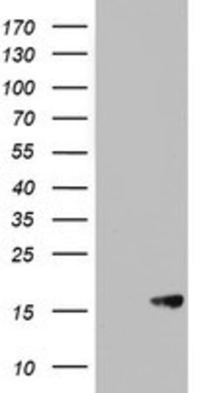 AVPI1 Mouse anti-Human, Clone: OTI6C5, lyophilized, TrueMAB  100 µg;
