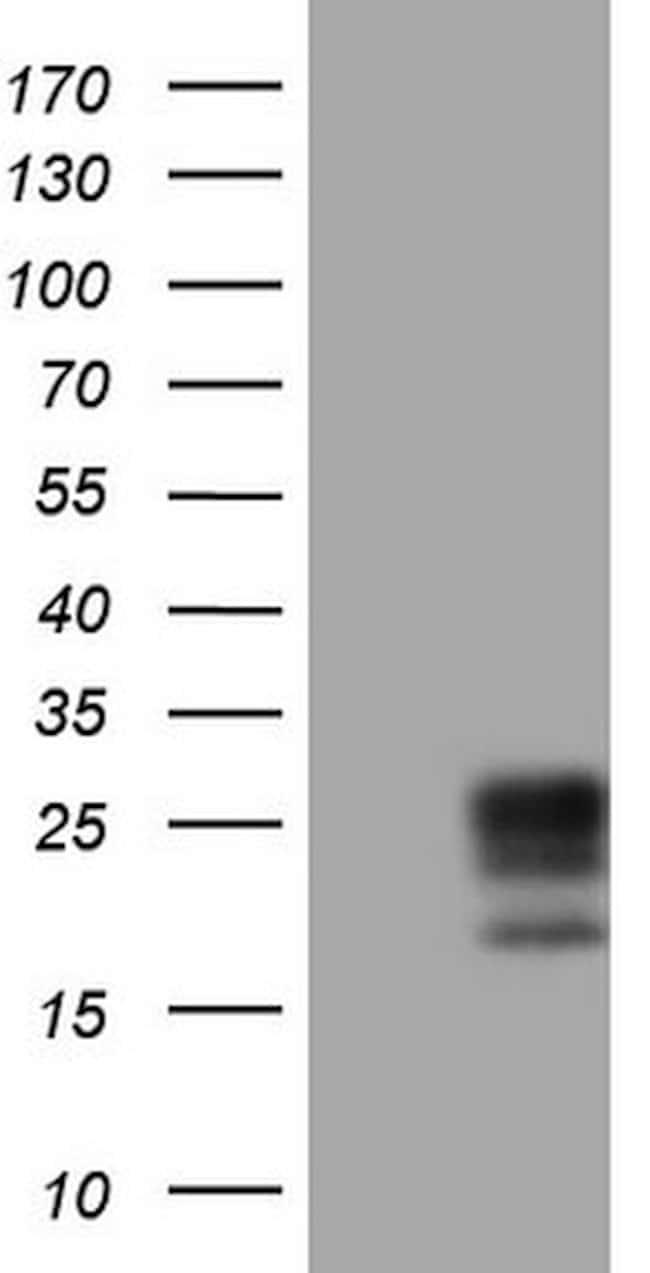 Adiponectin Mouse anti-Human, Clone: OTI3D3, lyophilized, TrueMAB  100