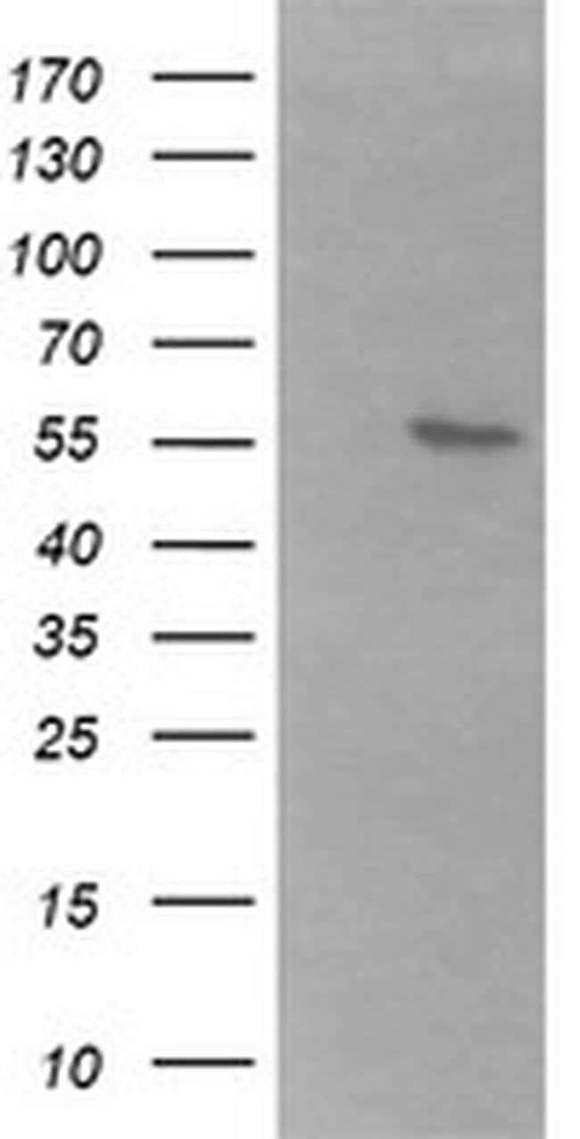 B3GALNT2 Mouse anti-Human, Clone: OTI1G2, liquid, TrueMAB  100 µL;