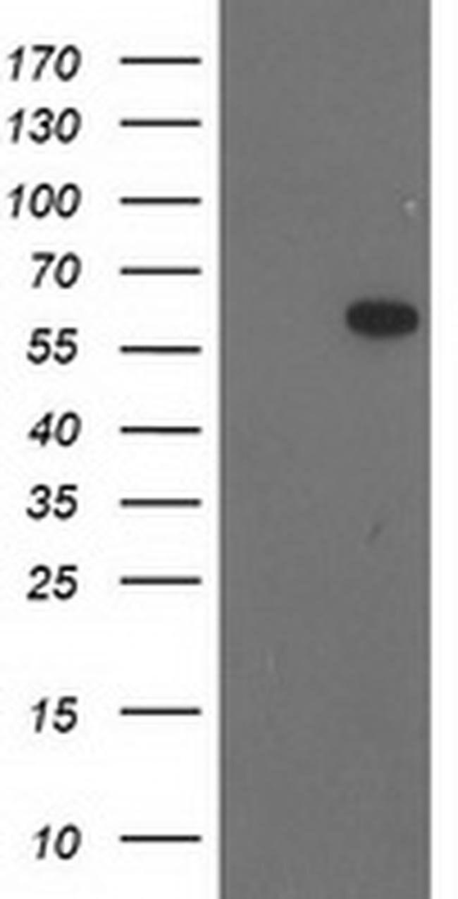 BAIAP2 Mouse anti-Human, Clone: OTI8G8, liquid, TrueMAB  100 µL; Unconjugated