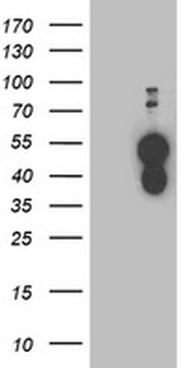BAIAP2 Mouse anti-Human, Clone: OTI1C10, liquid, TrueMAB  100 µL;