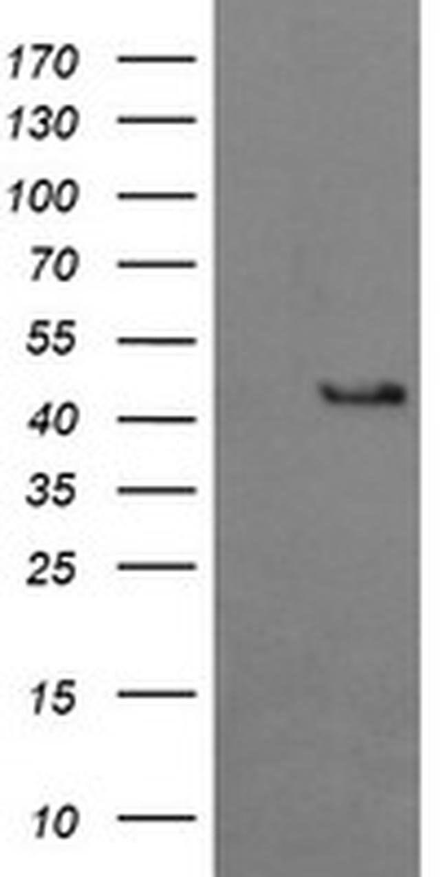 BBOX1 Mouse anti-Human, Clone: OTI4F9, liquid, TrueMAB  100 µL; Unconjugated