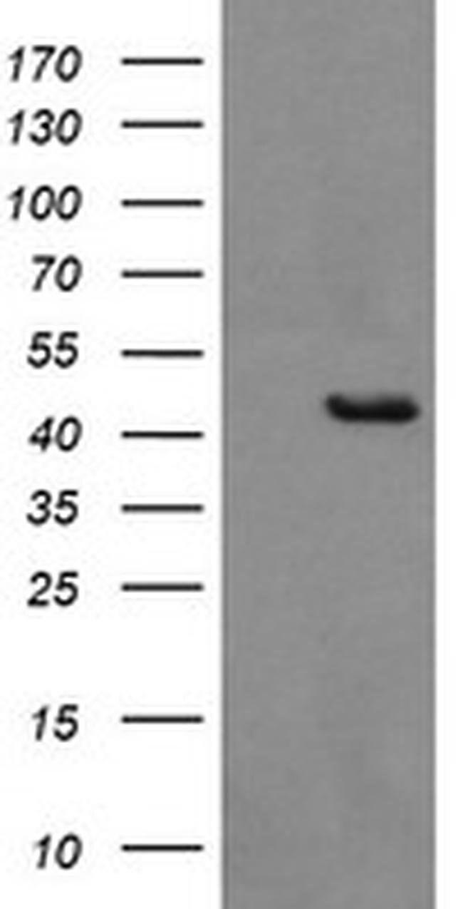 BBOX1 Mouse anti-Human, Clone: OTI8B12, liquid, TrueMAB  100 µL; Unconjugated