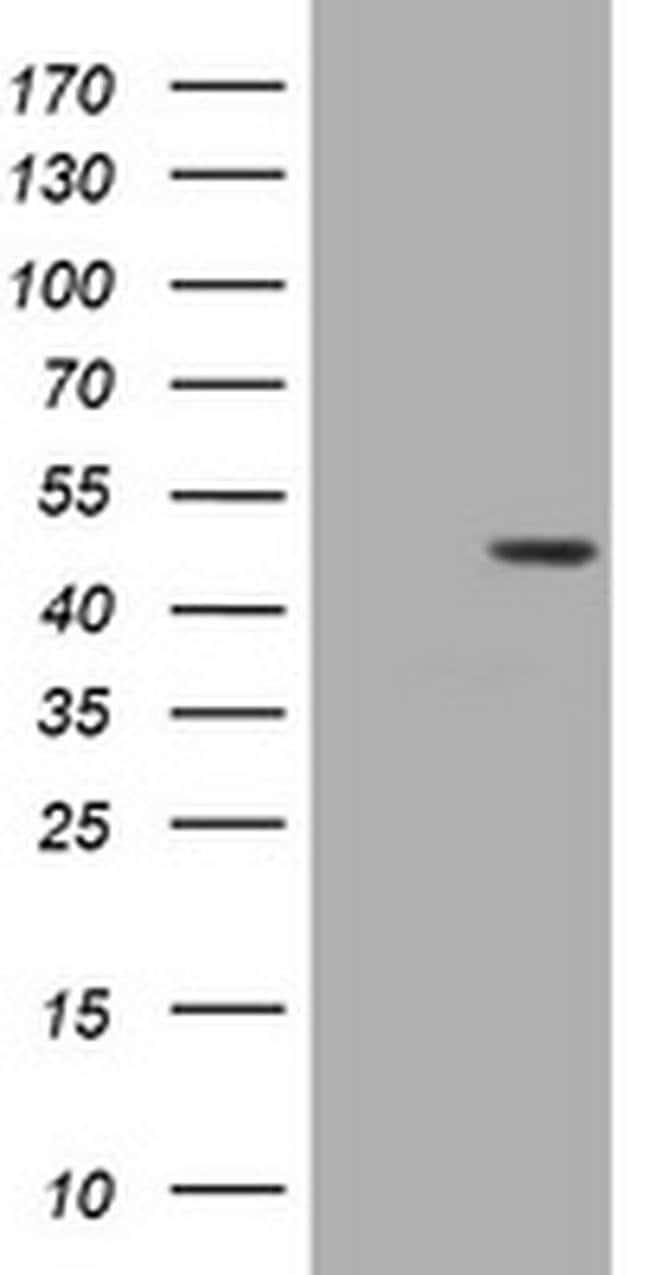 BBOX1 Mouse anti-Human, Clone: OTI8A8, liquid, TrueMAB  100 µL; Unconjugated