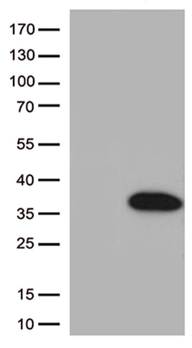 BCL2L1 Mouse anti-Human, Clone: OTI2D1, liquid, TrueMAB  100 µL; Unconjugated