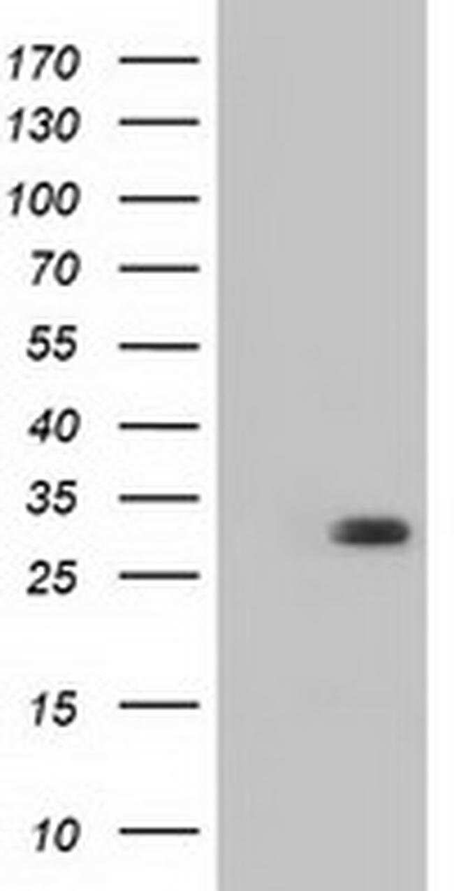 BDH2 Mouse anti-Human, Clone: OTI2G1, liquid, TrueMAB  100 µL; Unconjugated