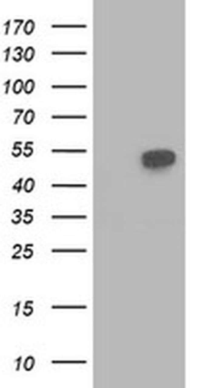 BECN1 Mouse anti-Human, Clone: OTI4A10, liquid, TrueMAB  100 µL; Unconjugated