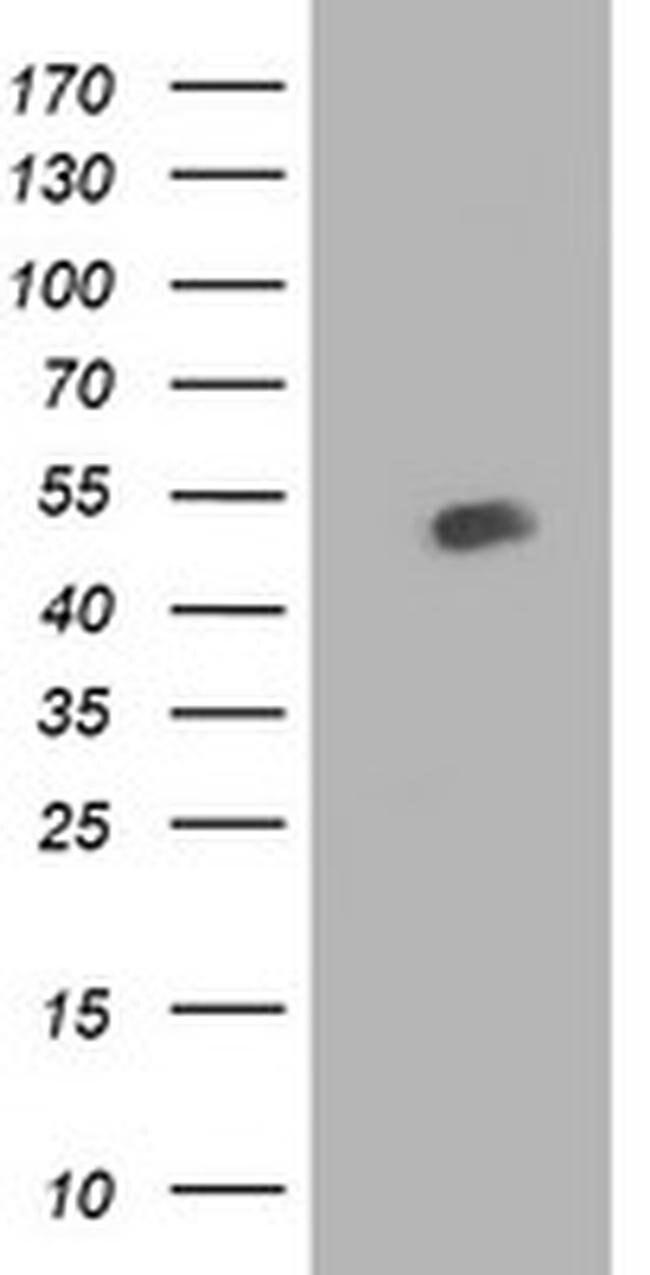 BECN1 Mouse anti-Human, Clone: OTI2D4, liquid, TrueMAB  100 µL; Unconjugated