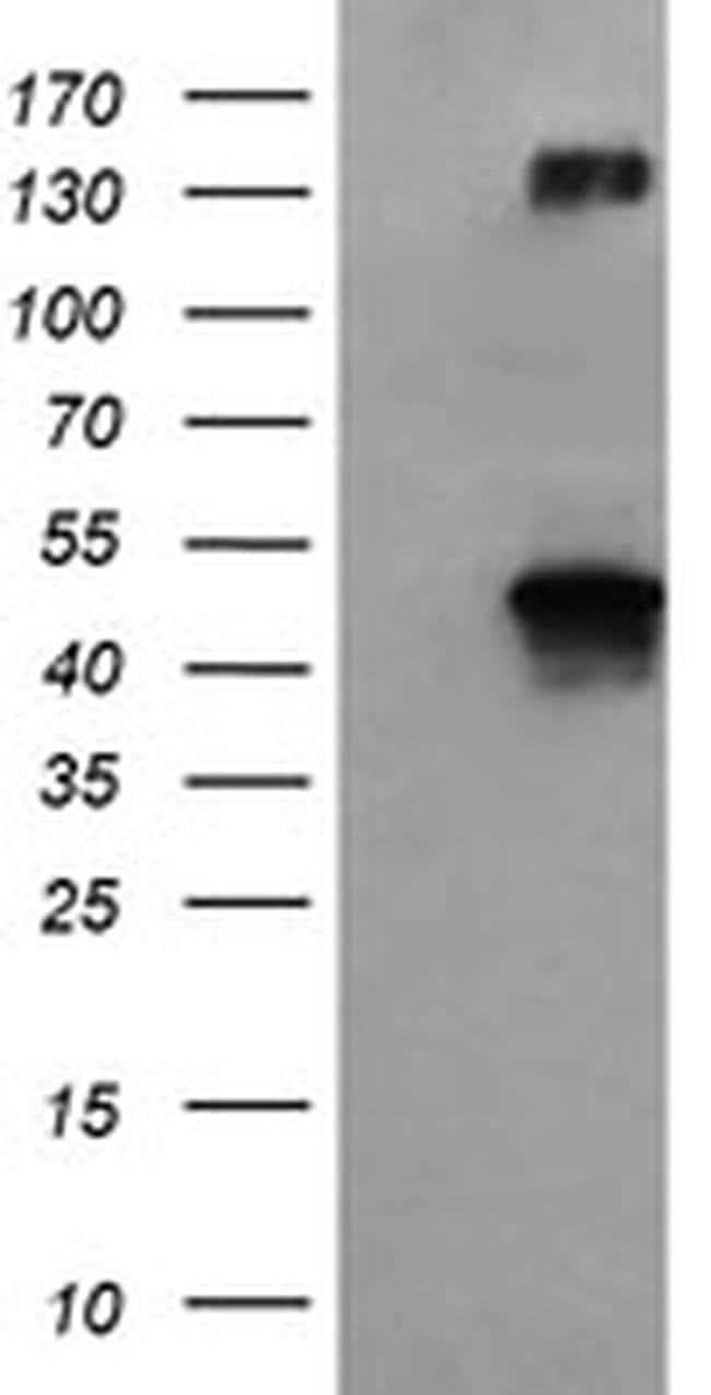 BHMT Mouse anti-Human, Clone: OTI10B3, liquid, TrueMAB  100 µL; Unconjugated