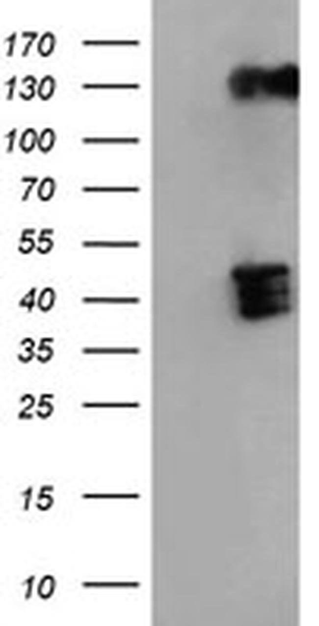 BHMT Mouse anti-Human, Clone: OTI1E5, liquid, TrueMAB  100 µL; Unconjugated