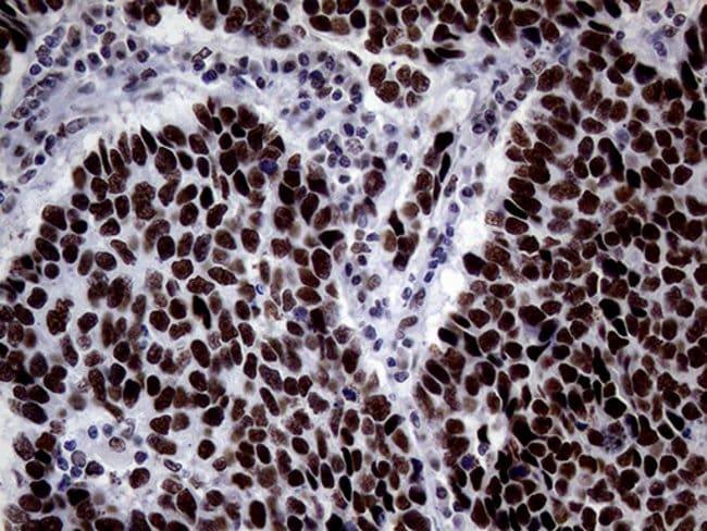BRCA1 Mouse anti-Human, Clone: OTI5D10, lyophilized, TrueMAB  100 µg;