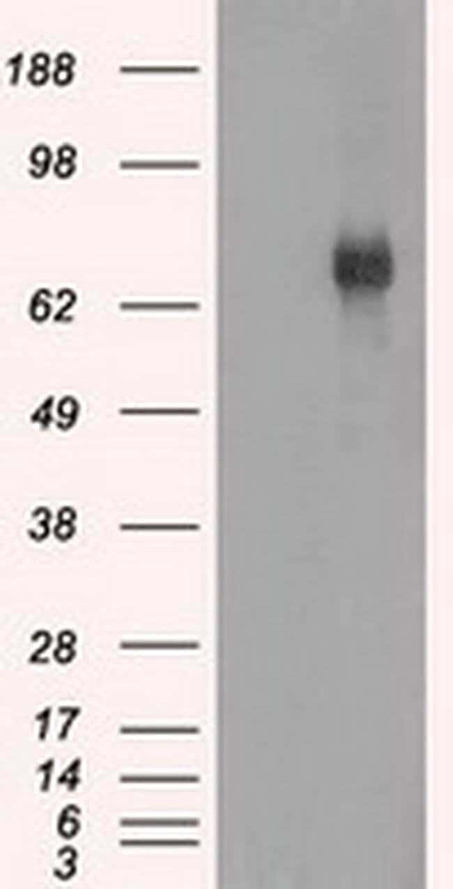 BTK Mouse anti-Human, Clone: OTI13E5, liquid, TrueMAB  100 µL; Unconjugated