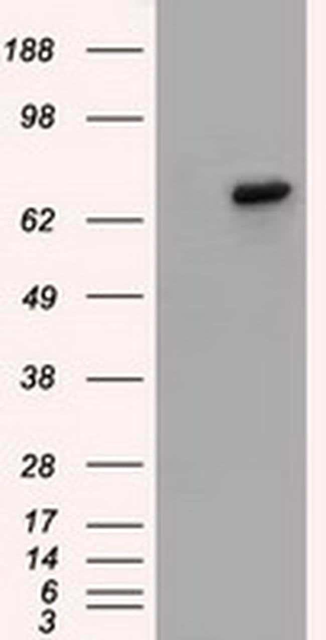 BTK Mouse anti-Human, Clone: OTI10E10, liquid, TrueMAB  100 µL; Unconjugated