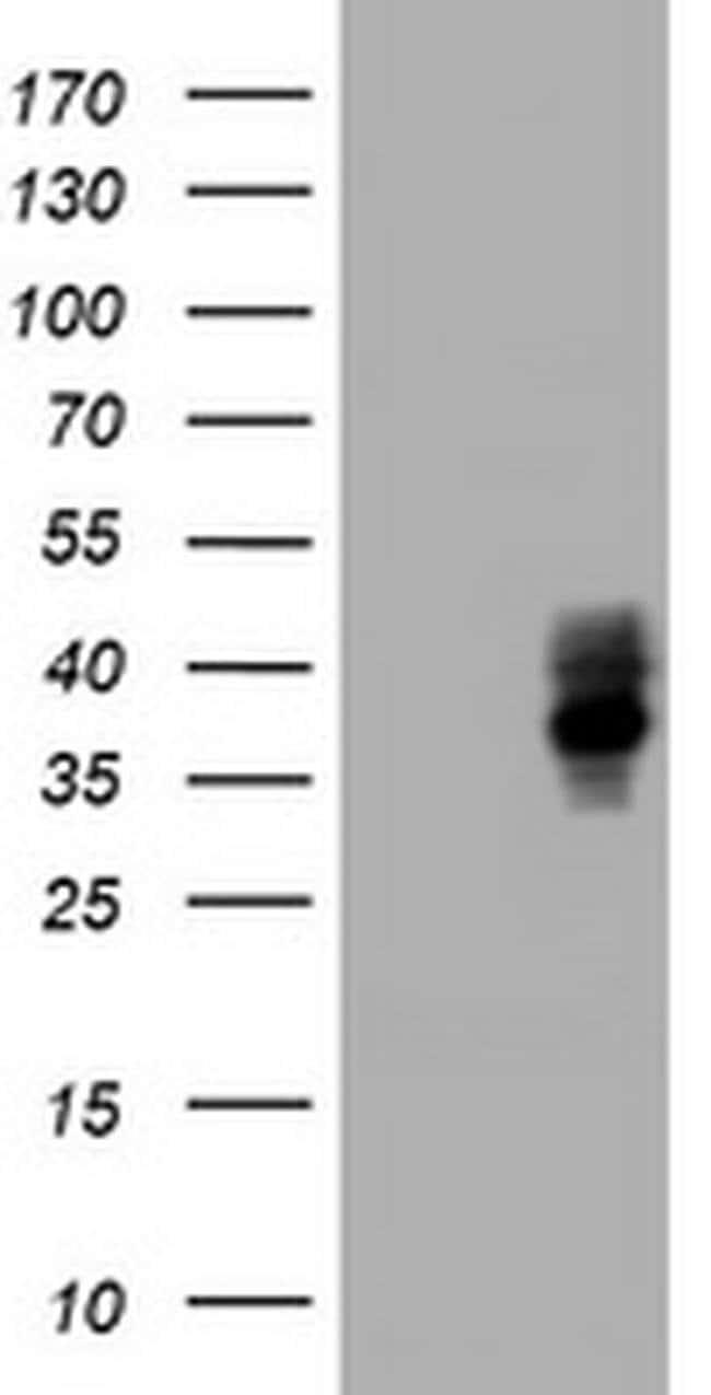 BTLA Mouse anti-Human, Clone: OTI1E5, liquid, TrueMAB  100 µL; Unconjugated