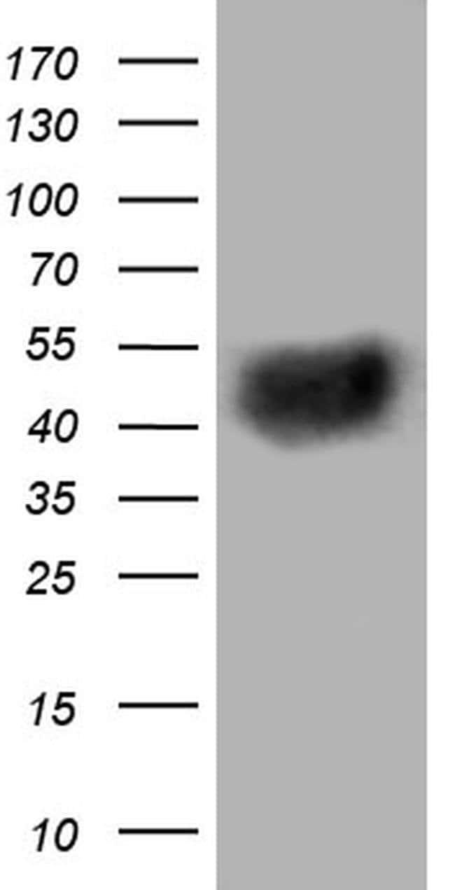 BTLA Mouse anti-Human, Clone: OTI2G2, liquid, TrueMAB  100 µL; Unconjugated