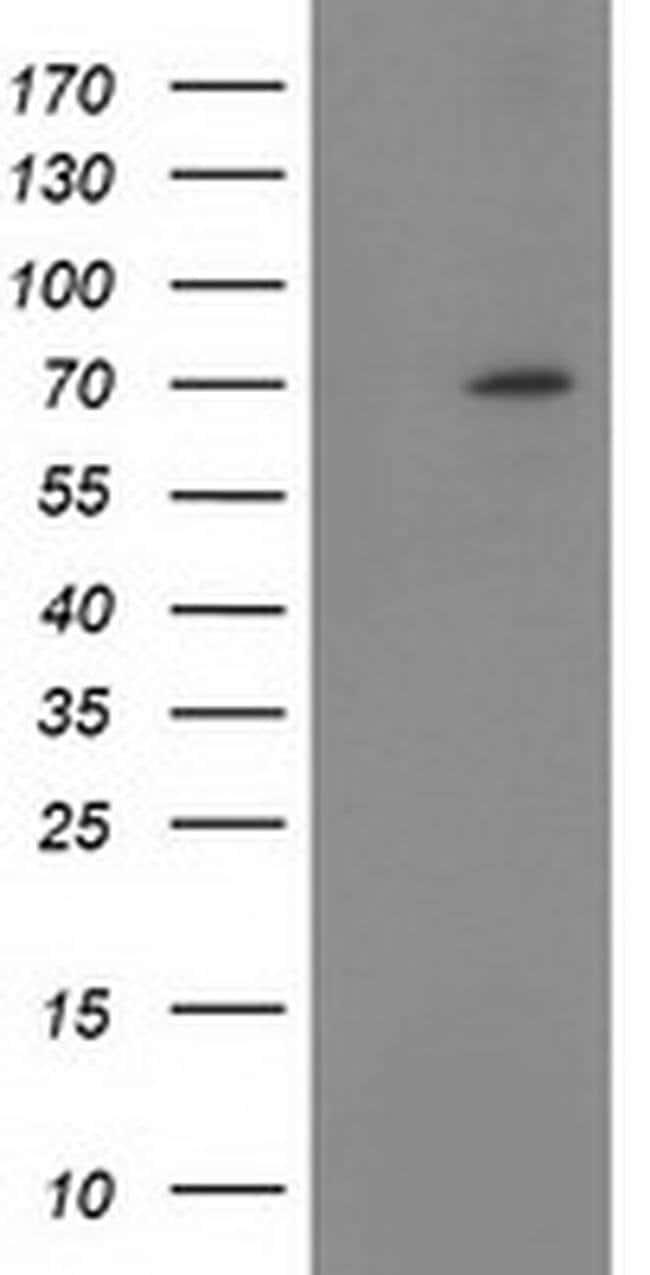 BTRC Mouse anti-Human, Clone: OTI1F3, liquid, TrueMAB  100 µL; Unconjugated