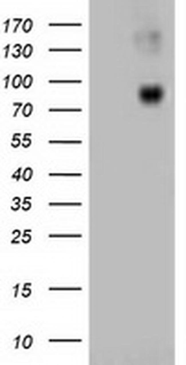 Beta-catenin Mouse anti-Canine, Human, Clone: OTI1G1, liquid, TrueMAB