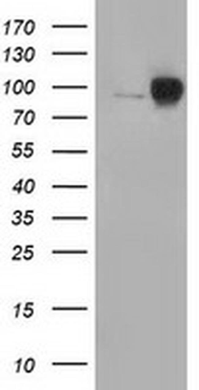 Beta-catenin Mouse anti-Human, Clone: OTI5D2, liquid, TrueMAB  100 µL;