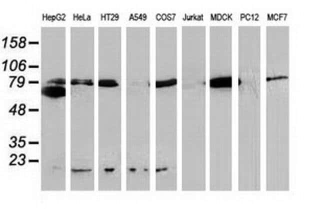 Beta-catenin Mouse anti-Canine, Human, Clone: OTI1E10, liquid, TrueMAB