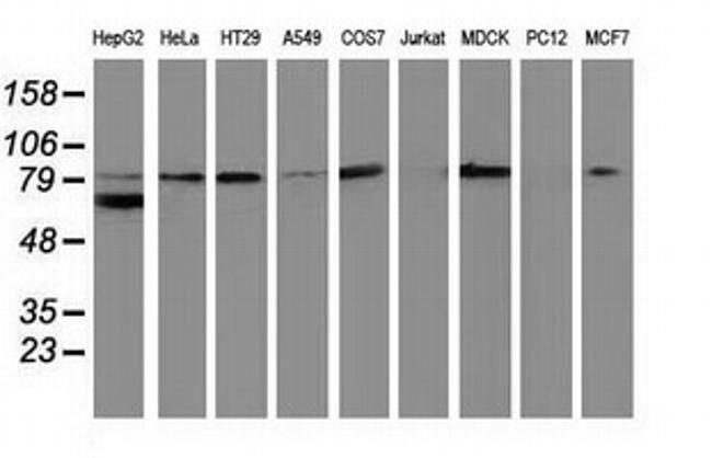 Beta-catenin Mouse anti-Canine, Human, Clone: OTI6E7, liquid, TrueMAB