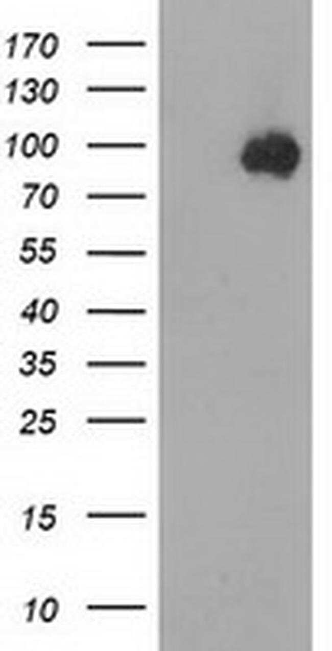 Beta-catenin Mouse anti-Human, Clone: OTI6A3, liquid, TrueMAB  100 µL;