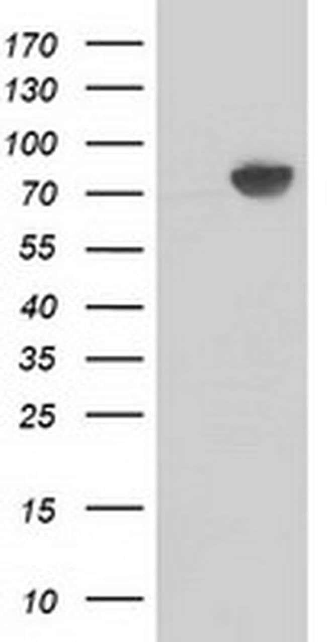 Beta-catenin Mouse anti-Human, Clone: OTI11H9, liquid, TrueMAB  100 µL;