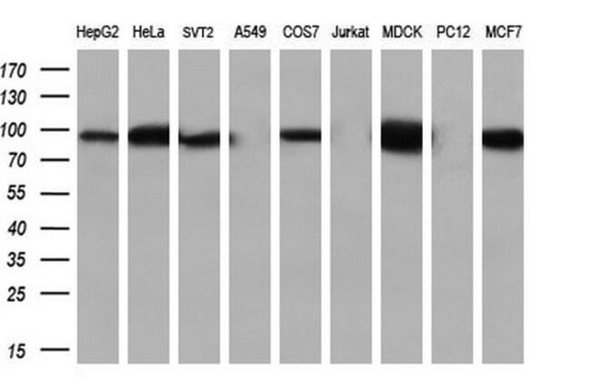 Beta-catenin Mouse anti-Human, Clone: OTI1B11, liquid, TrueMAB  100 µL;