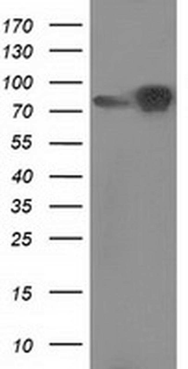 Beta-catenin Mouse anti-Canine, Human, Rat, Clone: OTI9H2, liquid, TrueMAB
